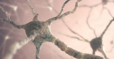 Image concept of neurons from the human brain.